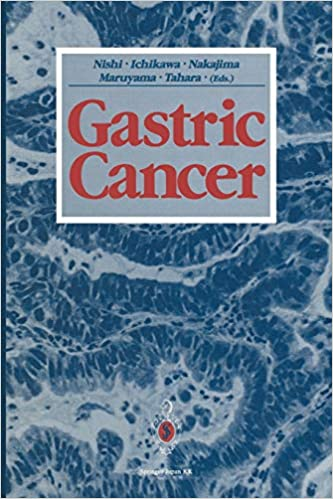 gastric cancer book gliste i paraziti kod odraslih
