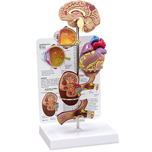 Hypertension Organ Model Set -