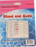 Microscope Prepared Slide Set - Blood & Guts (5 Slides)
