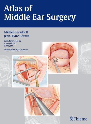 Atlas of Middle Ear Surgery (1st 2010) [Gersdorff & Gerard]