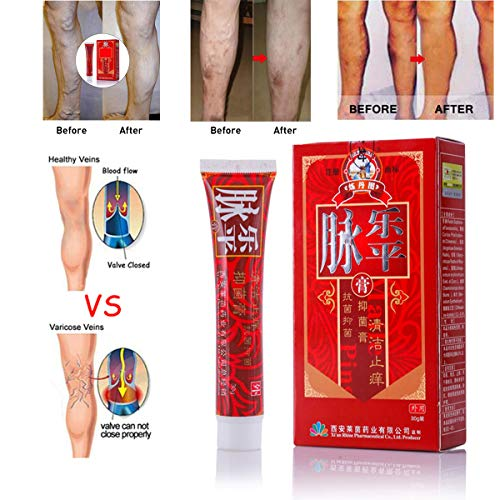 Traditional Herbal Varicose Veins Treatment Cream Ointment Relief Phlebitis Spider Veins Pain Angiitis Itching Lumps Remedy Skin Care Herbal Cream 30g