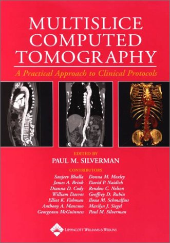 Multislice Computed Tomography: A Practical Approach to Clinical Protools.