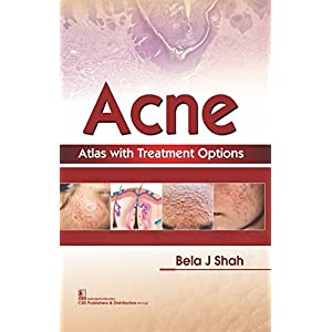 Acne Atlas With Treatment Options (Hb 2018)