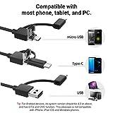 MoKo Ear Otoscope, HD 720P 3 in 1 USB Digital