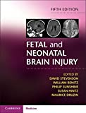 img - for Fetal and Neonatal Brain Injury book / textbook / text book
