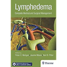 Lymphedema: Complete Medical and Surgical Management (English Edition)