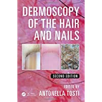 Dermoscopy of the Hair and Nails, Second Edition