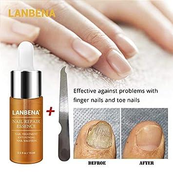 Amazon.com : Petansy Nail Repair Essence Toenail Fungus Treatment ...