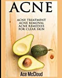 Acne: Acne Treatment: Acne Removal: Acne Remedies For Clear Skin (Acne Skin Care Treatments From Diet & Medical)