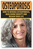 Osteoporosis: How To Reverse Osteoporosis, Build Bone Density And Regain Your Life
