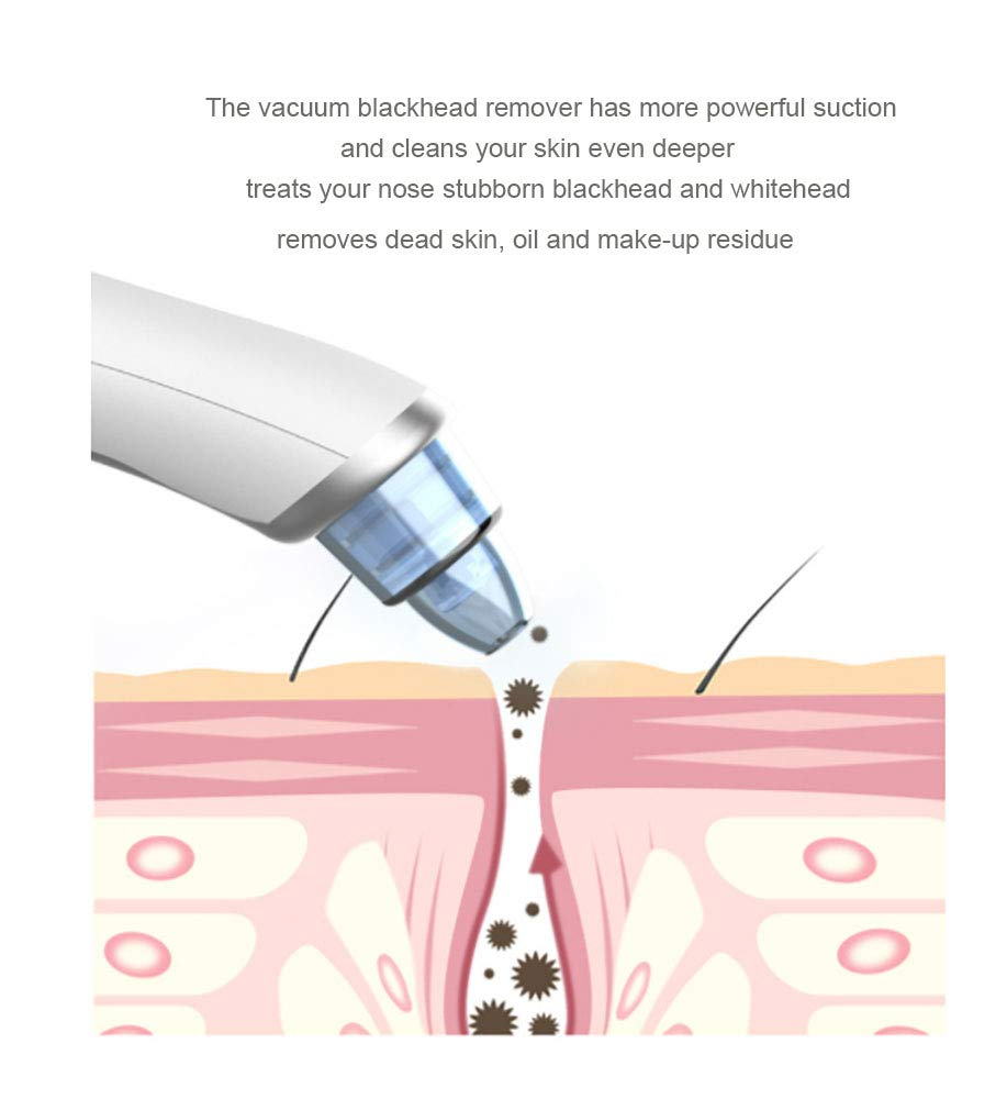 Blackhead Remover Vacuum Pore Cleaner, Wisfun Facial Pore Blackhead Extractor Tool Acne Comedo Removal Suction Beauty Device with 3 Adjustable Suction and 4 Replacement Probes