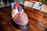 Anatomical Chart Co. Budget Jumbo Heart Model Item #: CH3