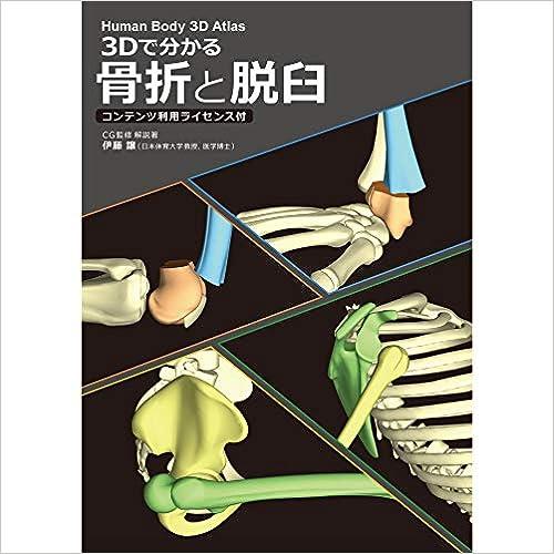 3Dで分かる 骨折と脱臼 コンテンツ利用ライセンス付