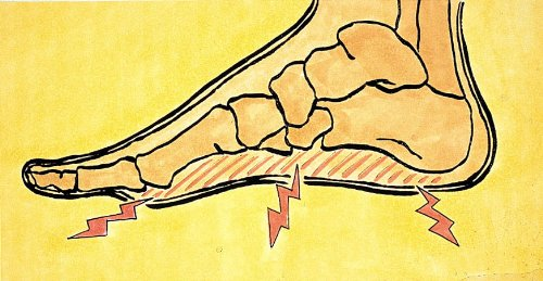 1 Paar Pedosan Fuß-Stütze