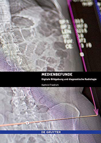 Medienbefunde: Digitale Bildgebung und diagnostische Radiologie (German Edition) por Kathrin Friedrich