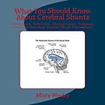What You Should Know About Cerebral Shunts