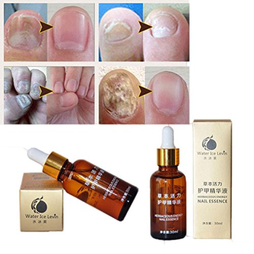 Hometom 2PCS Nail Treatment Essence Nail and Foot Whitening Toe Nail Fungus Removal (Gold)