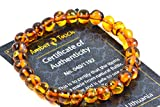 Product review for Baltic Amber Bracelet for Adults made on Elastic Band – Carpal Tunnel, Arthritis, Headache, Migraine Pain Relief - 7.5 Inches