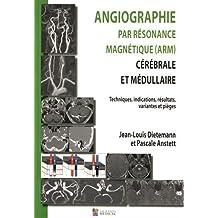 Angiographie Par Résonance Magnétique(arm): Cérébrale