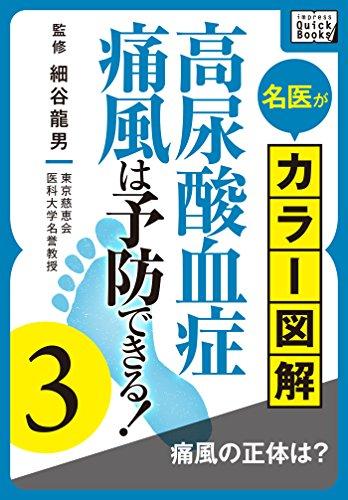 名医がカラー図解! 高尿酸血症・痛風は予防できる! (3) 痛風の正体は? (impress QuickBooks)