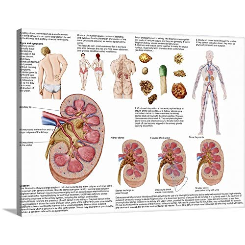 Medical Chart Showing The Signs and Symptoms of Kidney Stones Canvas Wall Art Print, 16