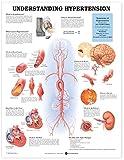 Understanding Hypertension 9781587794216