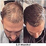 Laser Hair Growth Comb Brush with Biotin Hair