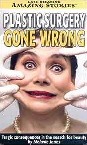 Disturbing Body Parts After Plastic Surgery Gone Wrong  |Plastic Surgery Procedure Gone Wrong