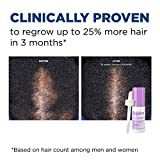 Women's Rogaine 2% Minoxidil Topical Solution for