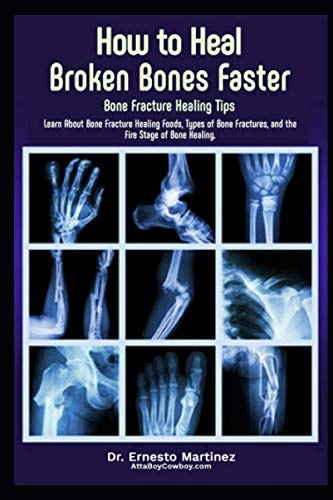 5139kLYLCSL - How to Heal Broken Bones Faster. Bone Fracture Healing Tips: Learn About Bone Fracture Healing Foods, Types of Bone Fractures, and the Five Stages of Bone Healing (Anti-aging)