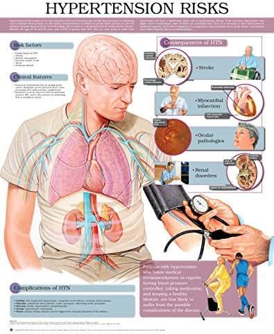 Hypertension Risks e chart: Full illustrated