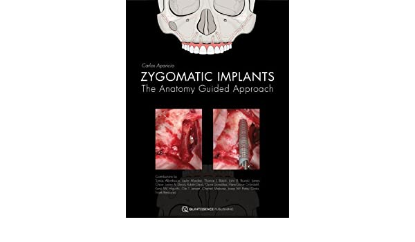 Zygomatic Implants The Anatomy Guided Approach 1st Edition By