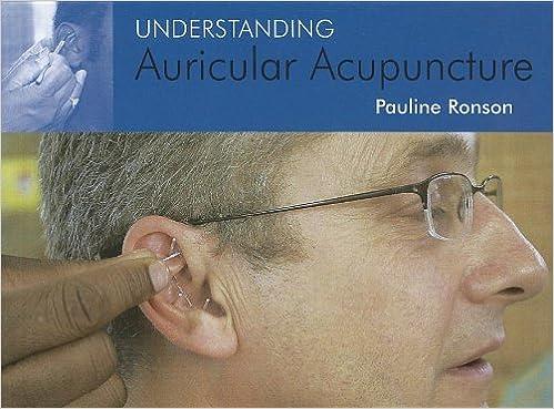 Understanding auricular acupuncture amazon pauline ronson understanding auricular acupuncture amazon pauline ronson 9781904439622 books fandeluxe Gallery