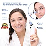 Blackhead Remover by Empyreus   Blackhead Vacuum Skin Pore Cleanser and Beauty Tool   Comedo Suction Microdermabrasion Machine for removing blackheads Men Women   1 Year
