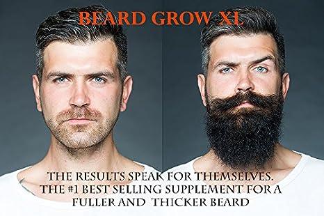 Beard Grow XL | Facial Hair Supplement | Vegan | #1 Mens Hair Growth  Vitamins | for Thicker and Fuller