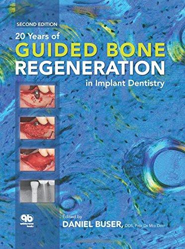 20 Years of Guided Bone Regeneration in Implant Denistry (Best Dental Implants Brands)
