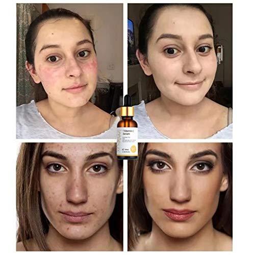 513GATVjuCL - kitt Facial Vitamin Serum 30ml, Dark Spots Corrective Moisturizing Firming Repair Scar Facial Serum - Anti-Aging, Whiten, Brighten Skin (Multicolor)