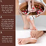 Electric Foot Callus Remover Kit, ELMCHEE