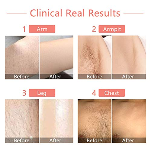Laser Hair Removal For Women Ipl Permanent Hair Removal Ice Cool