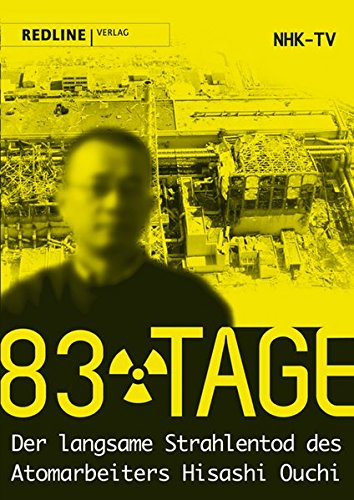 83 Tage: Der langsame Strahlentod des Atomarbeiters Hisashi Ouchi