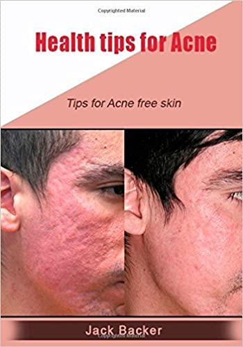 tips for acne free skin