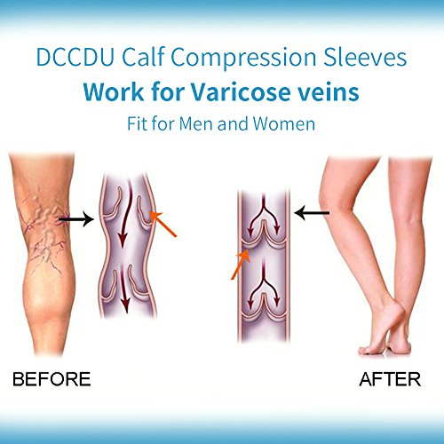 DCCDU Medical Open Toe,Knee High Compression Stockings 20-30mmHg 15-20mmhg For Women & Men,Best Toeless Compression Socks For Swelling,Varicose,Veins,Edema And So On (M, Beige) by DCCDU (Image #6)