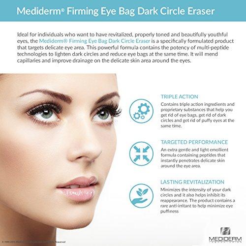 Best Under Eye Bags & Dark Circles Treatment Cream (1 pack ...
