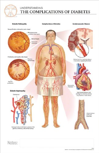 11 x 17 Post-It Disease Chart: COMPLICATIONS OF DIABETES: Science ...