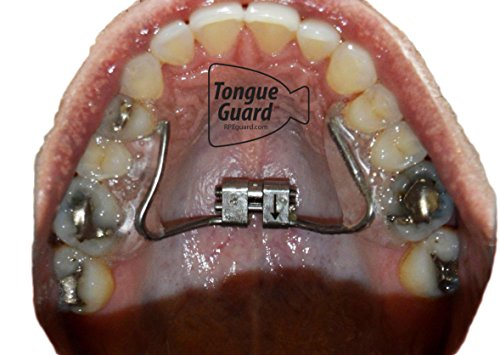 RPE Tongue Guard: Prevents and Helps Heal Tongue Sores Caused by Dental  Expanders