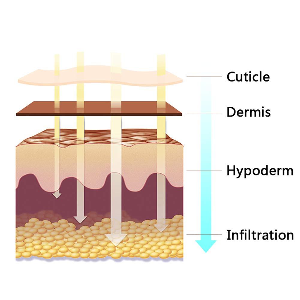 Hyaluronic Injection Pen Massage Atomizer Pen Kit High Pressure Acid Guns Remove Wrinkle Water Syringe Needle Injection Skin Machine 0.3mm,Silver