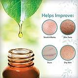 ReTone Body Oil: Stretch Mark Prevention