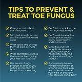 Fungi Nail Fungi-nail Pen applicator Anti-fungal