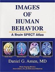 Images of Human Behavior: A Brain SPECT Atlas