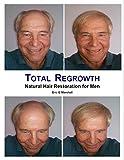 Total Regrowth: Natural Hair Restoration for Men
